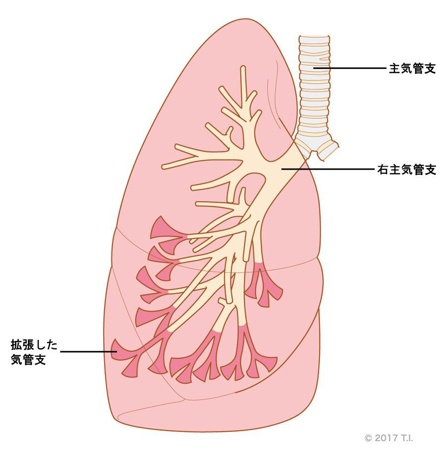 びまん性汎細気管支炎のイメージ(右肺モデル)