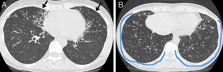 治療が不応なびまん性汎細気管支炎の患者さんのCT画像