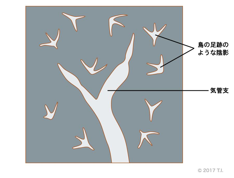 小葉中心性粒状影