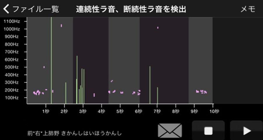 アプリ画面(聴診結果)