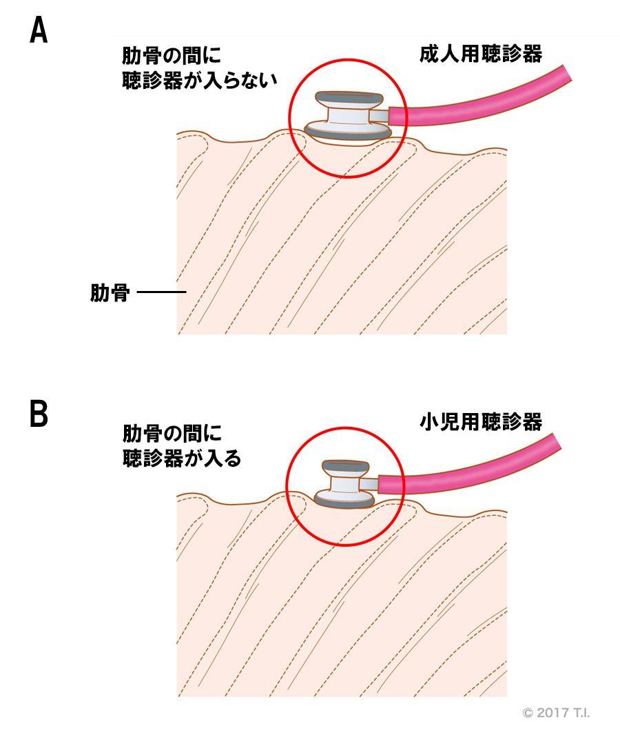 痩せている高齢患者さんに対する小児用聴診器の活用法