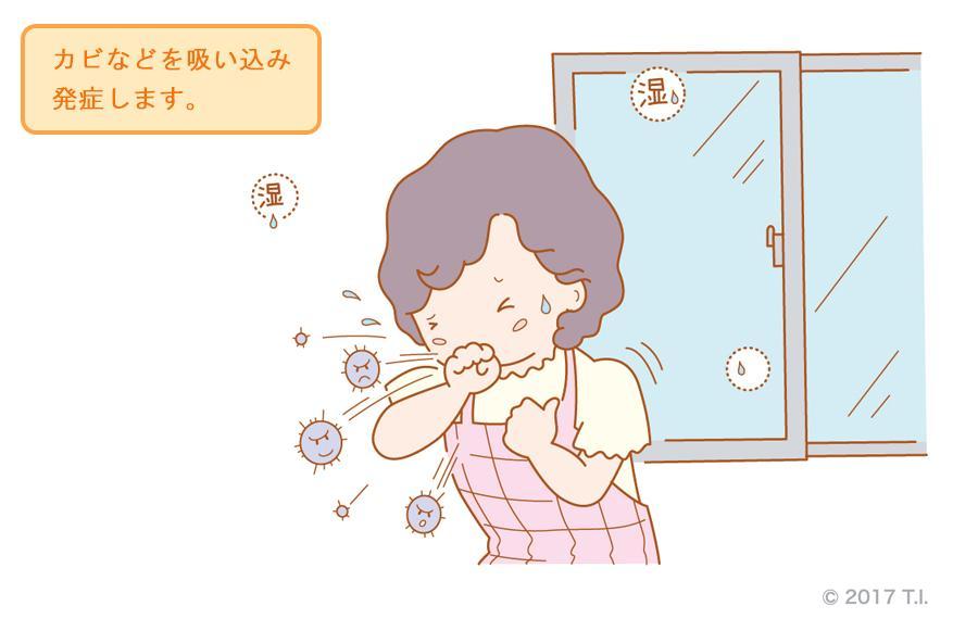 過敏性肺炎を引き起こす原因