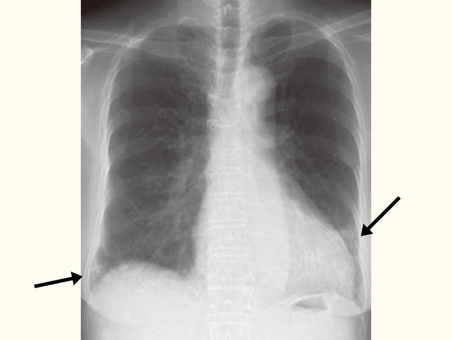 慢性過敏性肺炎の患者さんの胸部X線画像