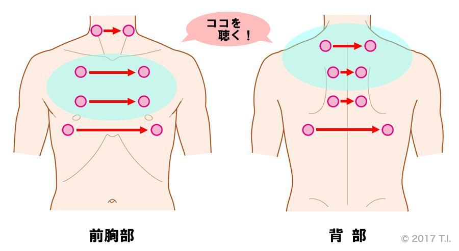 急性過敏性肺炎の患者さんに行うべき聴診の位置