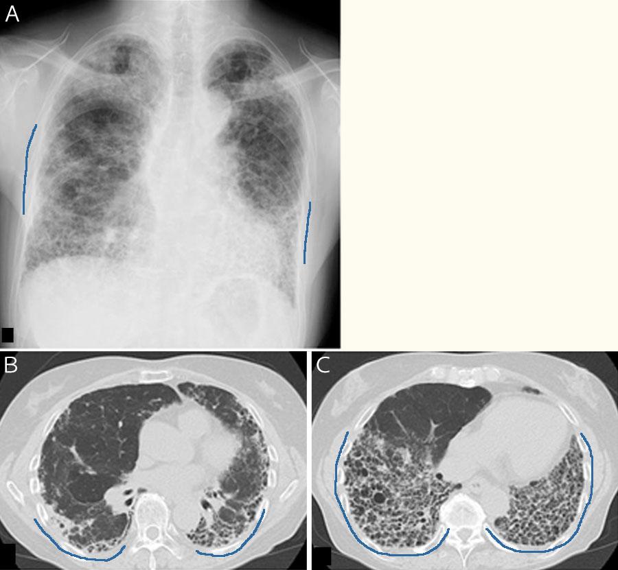 強皮症、混合性結合組織病に合併した間質性肺炎の患者さんの胸部胸部X線・CT画像