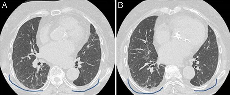 軽症な特発性間質性肺炎の患者さんの胸部CT画像