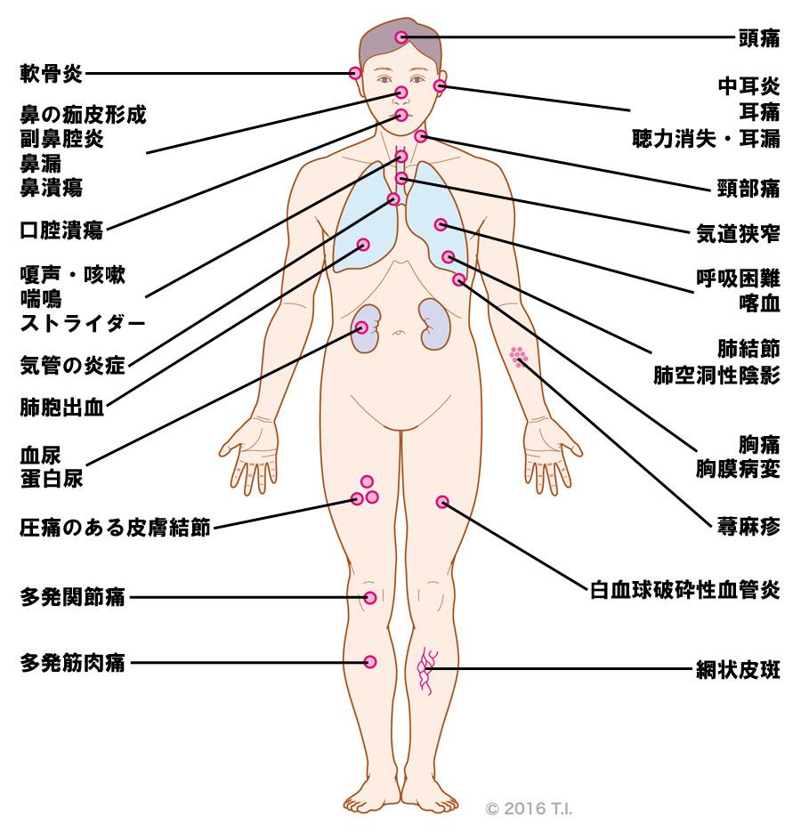 ANCA関連血管炎が引き起こす多臓器障害
