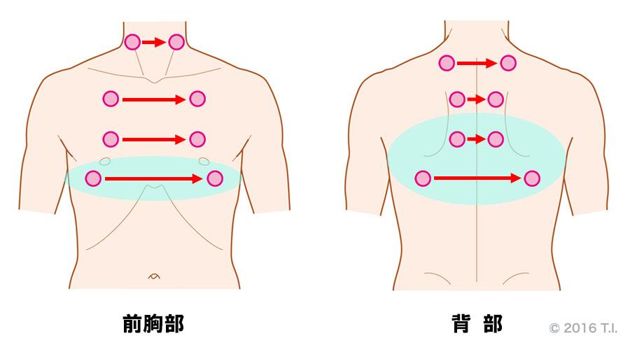 間質性肺炎の患者さんに行うべき聴診の位置