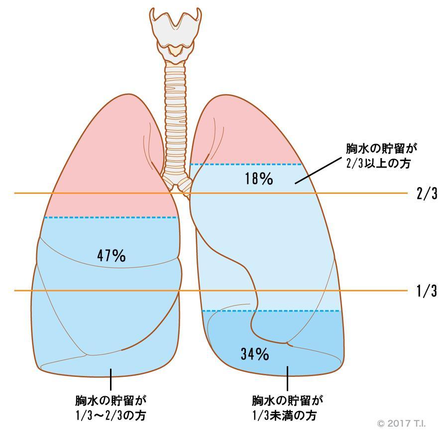 胸水の貯留量と患者の関係