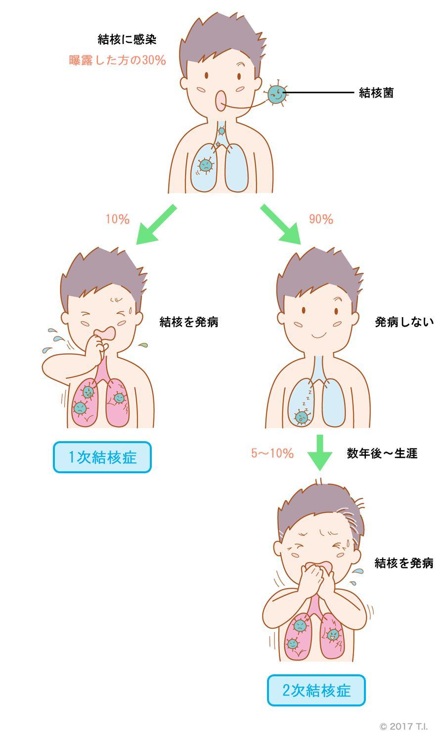 1次結核症と2次結核症の発症の違い