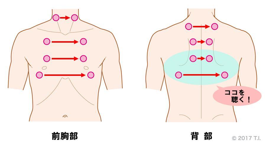 結核性胸膜炎の患者さんに行うべき聴診の位置