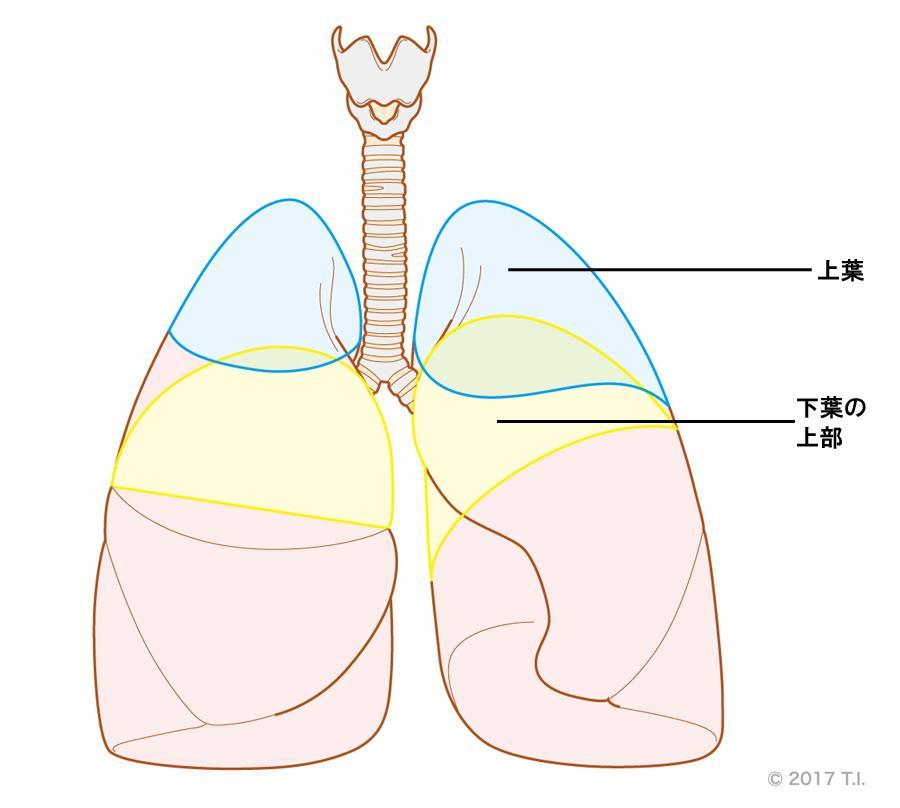 肺結核が好発する部位