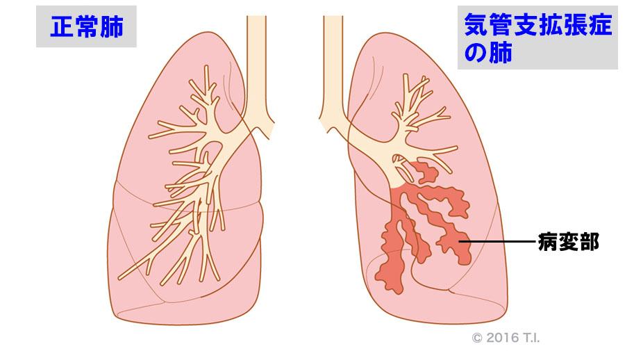 気管支拡張症のイメージ