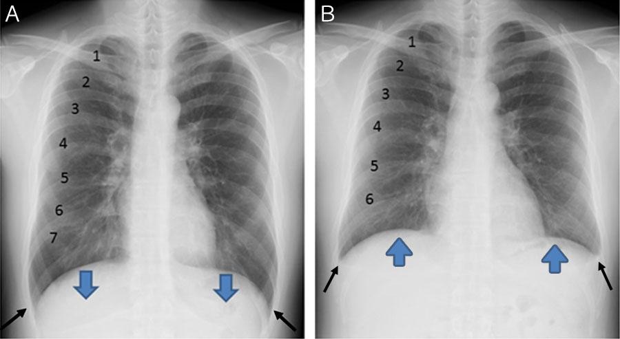 気管支喘息の患者さんのX線画像
