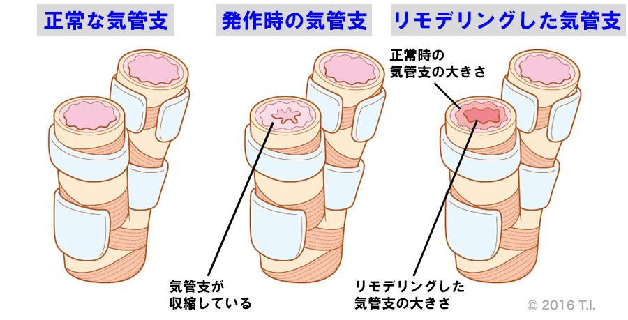気管支喘息のイメージ