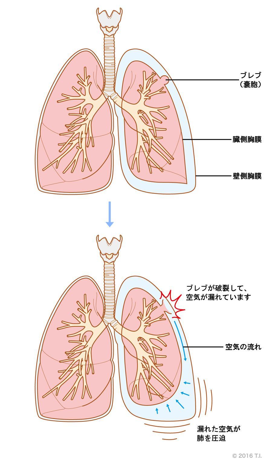 気胸が発生する仕組み