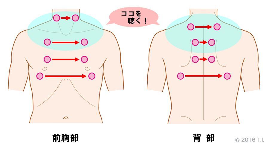 気胸の患者さんに行うべき聴診の位置
