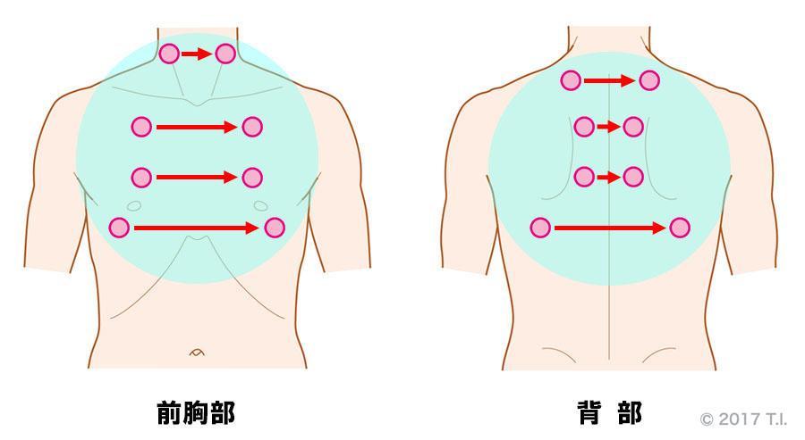 急性好酸球性肺炎の患者さんに行うべき聴診の位置