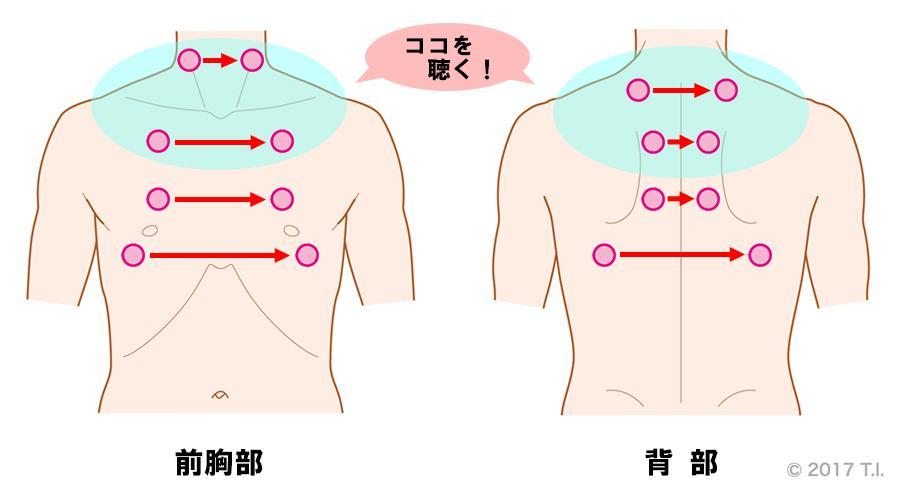慢性好酸球性肺炎の患者さんに行うべき聴診の位置