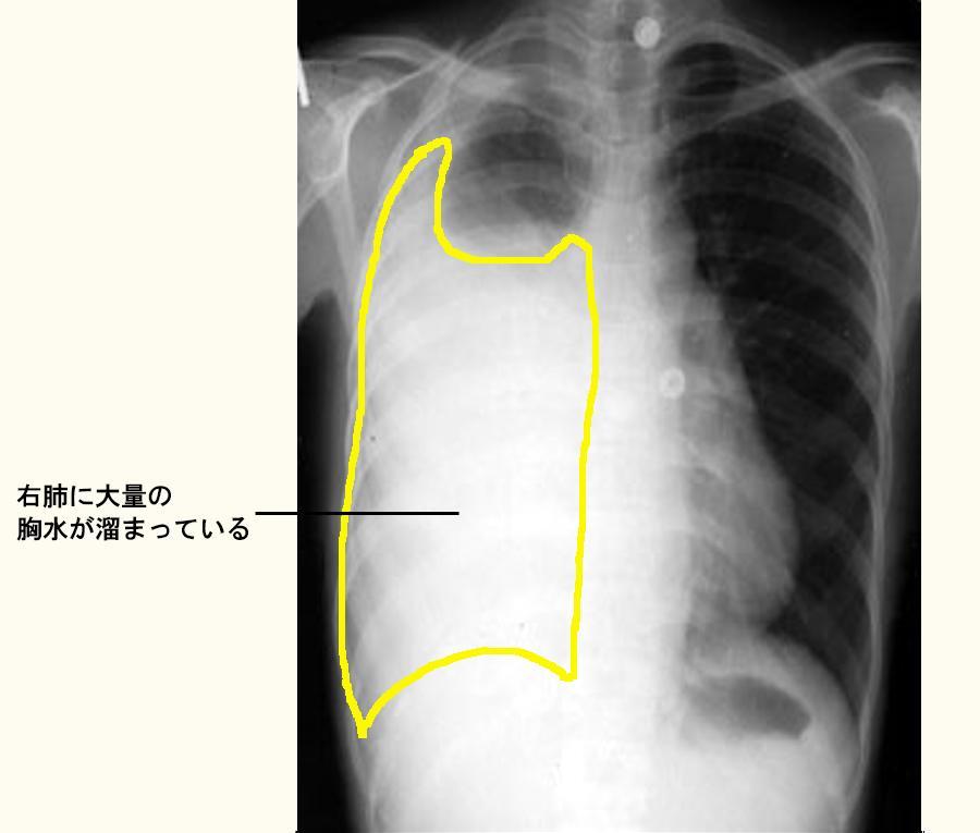右肺に大量の胸水がある患者さんのX線像