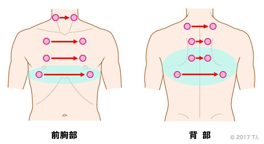 特発性肺線維症の患者さんに行うべき聴診の位置