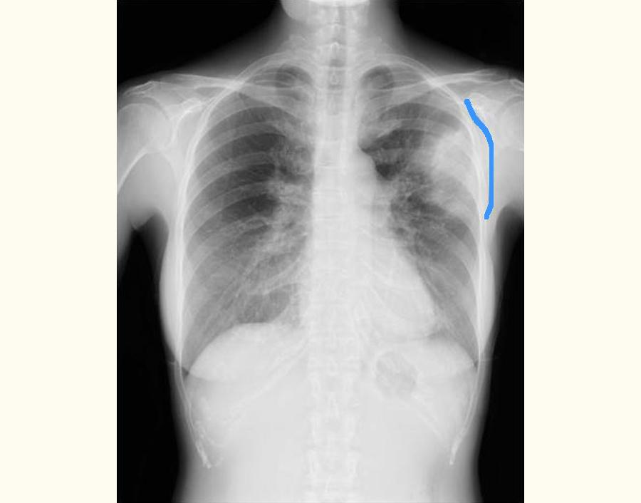 特発性器質化肺炎の患者さんの胸部X線画像