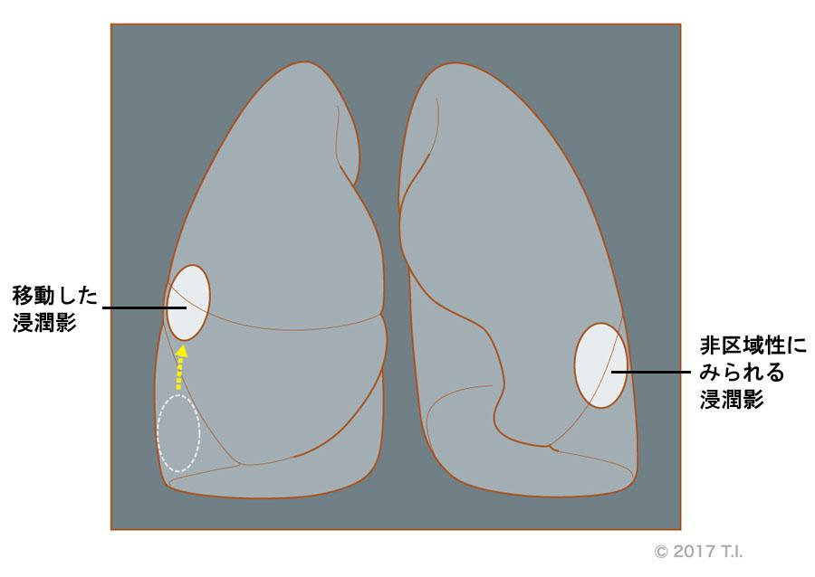 変わった浸潤影が見られる特発性器質化肺炎