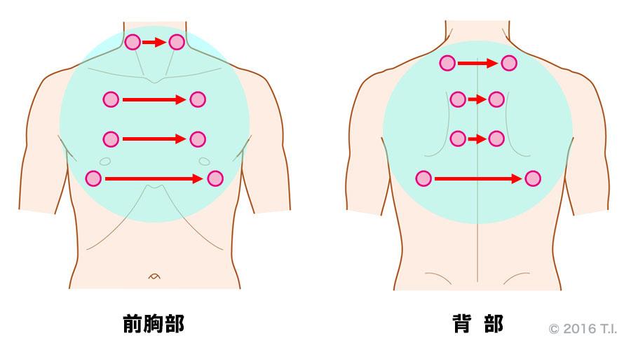 薬剤性肺炎の患者さんに行うべき聴診の位置