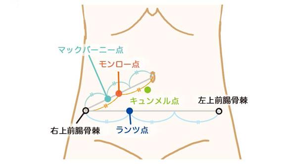 「虫垂炎 圧痛点」の画像検索結果