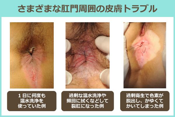 さまざまな肛門周囲の皮膚トラブル