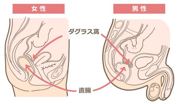 ダグラス窩と直腸の位置関係