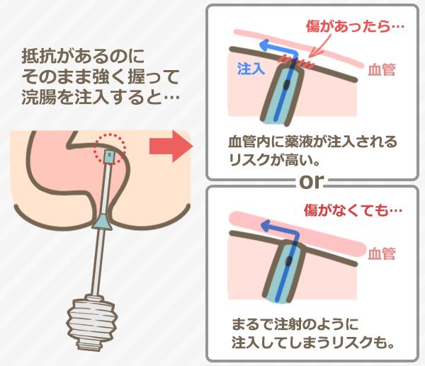 抵抗があるのにそのまま強く握って浣腸を注入すると…⇒傷があったら血管内に薬液が注入されるリスクが高い、傷がなくてもまるで注射のように注入してしまうリスクも