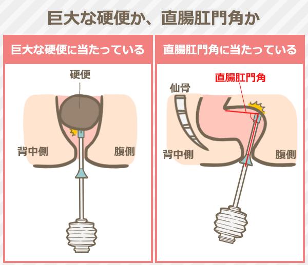 巨大な硬便に当たっているか、直腸肛門角に当たっているか