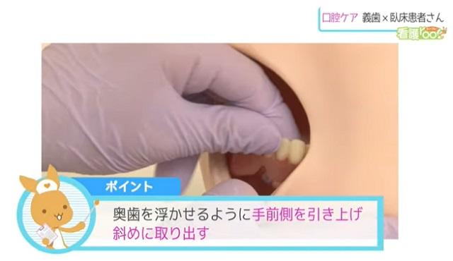 ポイント 奥歯を浮かせるように手前側を引き上げ斜めに取り出す