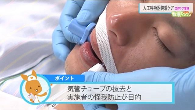 気管チューブの抜去と実施者の怪我防止が目的