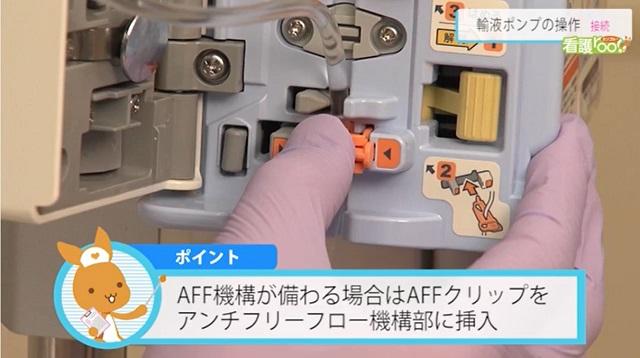 AFF機構が備わる場合はAFFクリップをアンチフリーフロー機構部に挿入