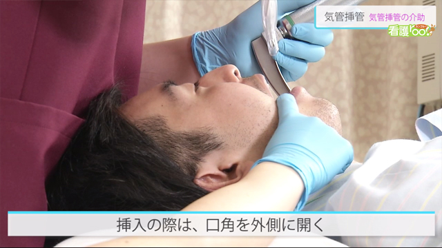 医療 気管 挿管 弘前大病院、気管挿管外れる医療事故を公表 改善策も:朝日新聞デジタル