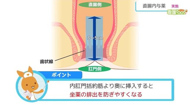 ポイント 内肛門括約筋より奥に挿入すると坐薬の排出を防ぎやすくなる